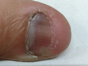 爪の状況(右親指)